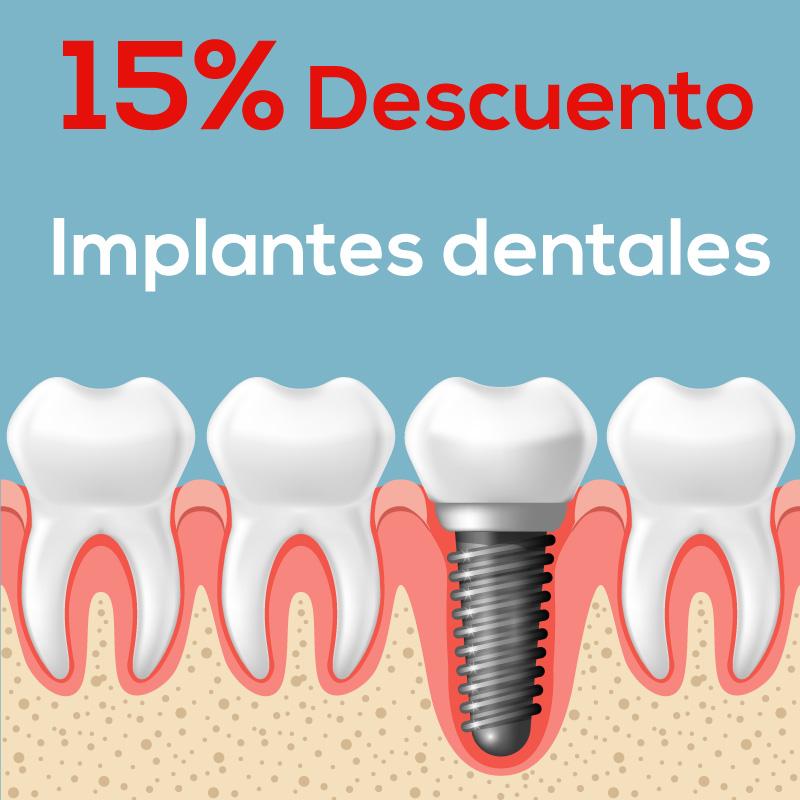 Implantes dentales en nicaragua
